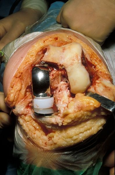 Oxford unilateral knee replacement