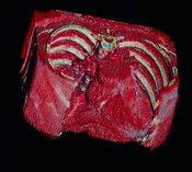 Electron beam tomography scan of coronary disease