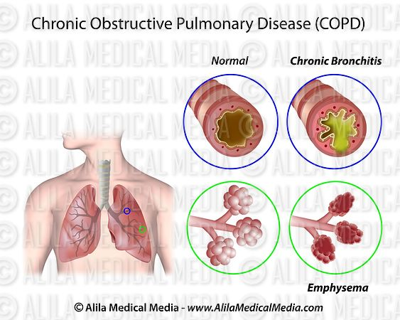 """respiratory diseases emphysema essay Respiratory disease paper kelly lindquist hcs/245 10/30/2014 university of phoenix respiratory disease paper there are several types of respiratory diseases that not only affect, but claim the lives of people in the united states each year """"copd"""" chronic obstructive pulmonary disease, lung cancer, emphysema, and pneumonia to name a few."""