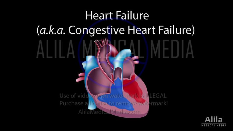 Congestive heart failure NARRATED animation