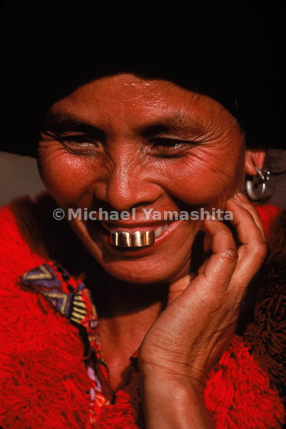 A woman from the Yao ethnic group displays a dazzling set of gold teeth