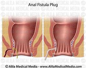 Anal fistula repair