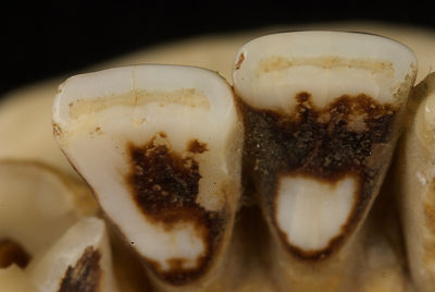 Incisors showing dentine through worn surface