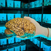 Brain research photos