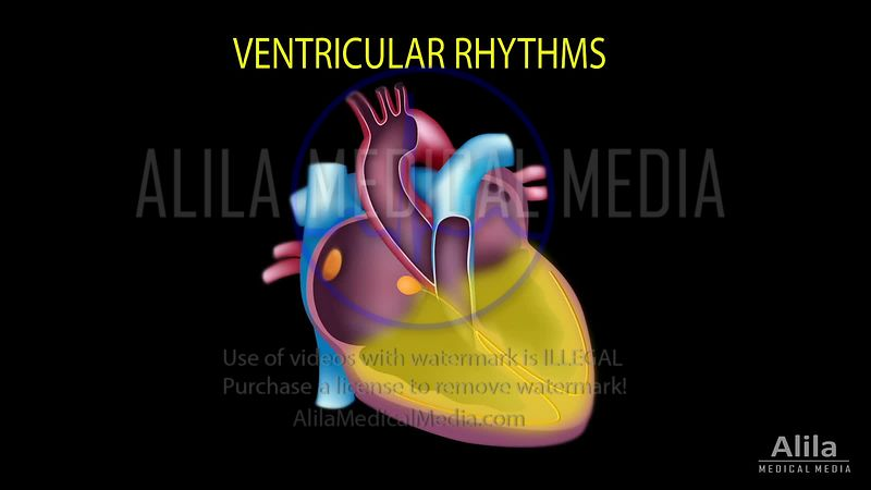 Cardiac arrhythmias NARRATED part 3