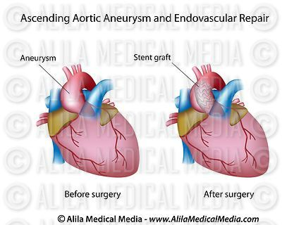 Ascending aortic aneurysm and endovascular repair
