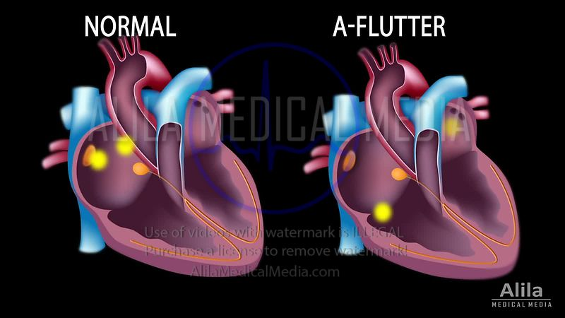 Atrial flutter vs normal sinus rhythm version 2