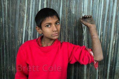 Ajay is a boy living in the Paharganj area of Delhi, India. He's homeless and has polio, and is addicted to sniffing glue. He cuts himself to gain sympathy from tourists. Here he shows his arm several weeks after I began treating a severely infected razor blade wound.