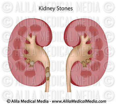 Healthy kidney and kidney with stones