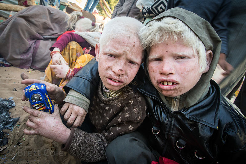 Albino brothers play with a toy car I gave them as a gift, Pushkar, Rajasthan, India. The family of ten albinos is panhandling during the Pushkar Camel Fair.
