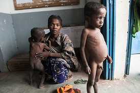 This picture taken on March 4, 2015 shows a woman and her two severely malnourished children (16 months and 5 years old) waiting to be treated by a doctor at the health center in the village of Imongy, in the Tsihombe district of southern Madagascar. The World Food Program, whose food distribution currently allows 120,000 people to survive, is asking for international aid as an exceptional drought from October 2014 through February 2015 destroyed crops in the region.