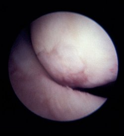 Osteoarthritis of the femoral condyle