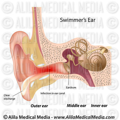Swimmer's ear,  labeled diagram.