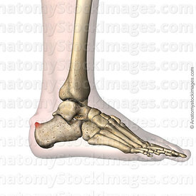 ankle-haglund-s-deformity-calcaneus-redness-lateral-skin