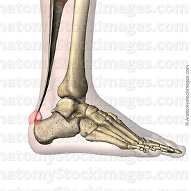 ankle-haglund-s-syndrome-calcaneus-redness-pain-prominence-retrocalcaneal-bursa-retrocalcanea-lateral-skin