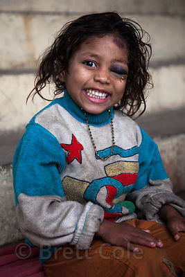 "A girl with a ""black-eye"" smiles for a portrait while receving care at a free health clinic run by the French NGO Agir pour Benares, at the Burning Ghats in Varanasi, India."