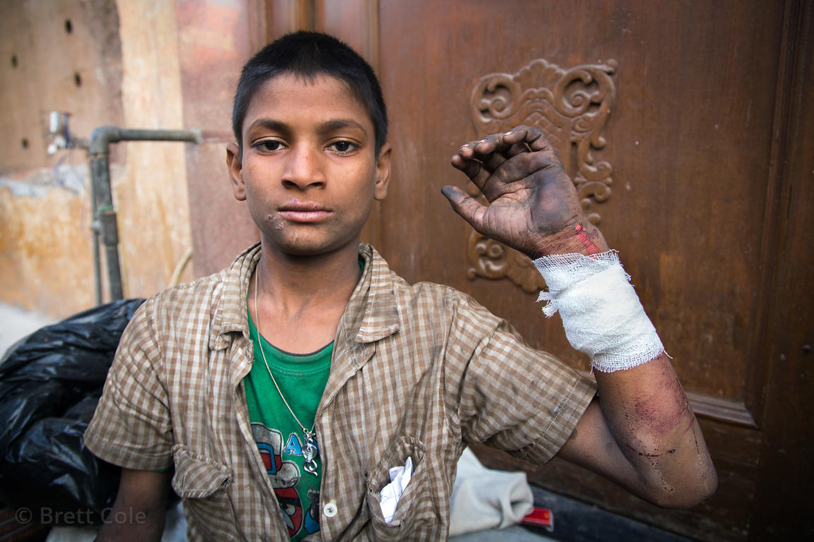 Ajay is a boy living in the Paharganj area of Delhi, India. He's homeless and has polio, and is addicted to sniffing glue. He cuts himself to gain sympathy from tourists. This is after our doctor visit for dressing and a tetanus shot.