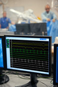 ECG monitor in cardiac surgical operation