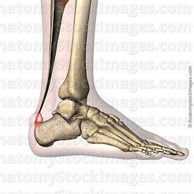 ankle-haglund-s-syndrome-calcaneus-redness-prominence-retrocalcaneal-bursa-retrocalcanea-lateral-skin