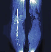 MRI Scan for Deep Vein Thrombosis