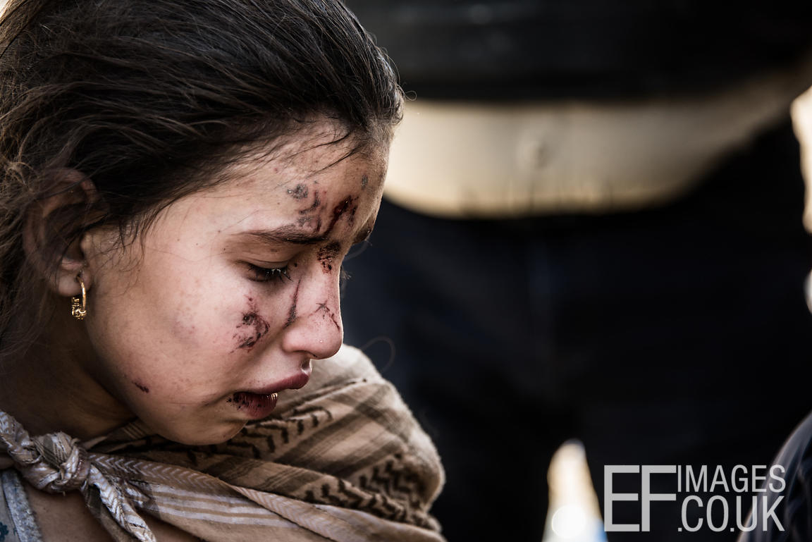 Suffering shrapnel wounds while fleeing from her home in the Old City district of West Mosul, this girl became separated from her parents and will move on to a camp for displaced people with just her younger sister. June 2017