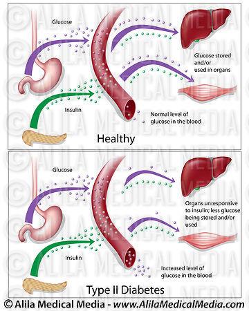 sykdom hormoner diabetes diabetes type
