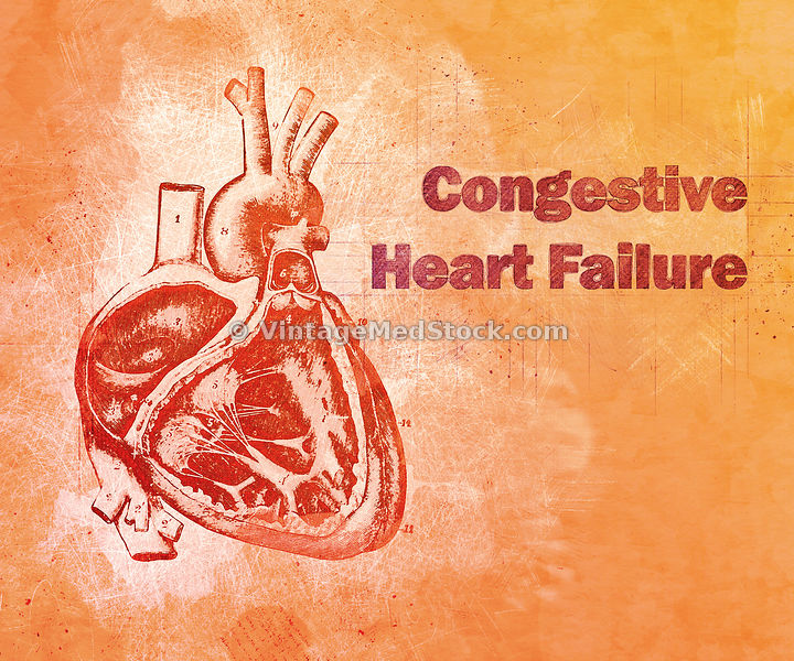 Concept for Congestive Heart Failure | Digital Illustration