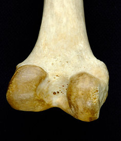 Posterior view of right femur, close-up of condyles