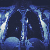 MRI scans of DVT-related pulmonary embolism