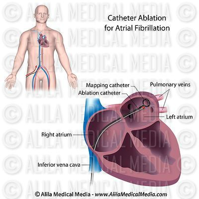 AF catheter ablation procedure labeled.
