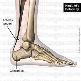 ankle-haglund-s-deformity-achilles-tendon-calcaneus-lateral-skin-names