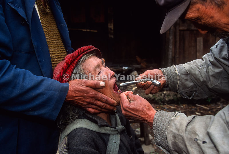 Dentist, Li Zin Yun, 65, pulls woman's teeth using dental tools left by National Geographic explorer, Joseph Rock..Yuhu, Yunnan, China