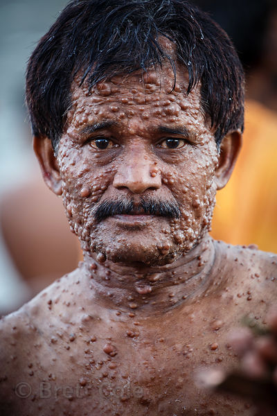 A man with leprosy bathes in the Hooghly River during Mahalaya, Babughat, Kolkata, India