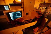 Proton beam therapy for eye tumours
