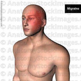 head-headache-migraine-headaches-pain-painlocation