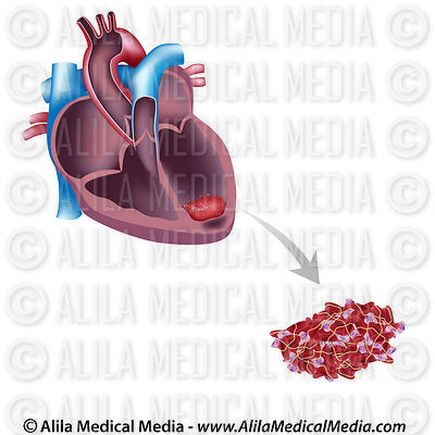 Alila medical media heart and circulatory system images for Mural thrombus