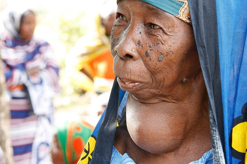An elderly woman with Goiter seeks treatment at a Zanzibar Outreach medical camp in Kitope, Zanzibar 11 October, 2010. Ironically for an island, Goiter is very common in Zanzibar and associated with lack of seafood in their diet. 