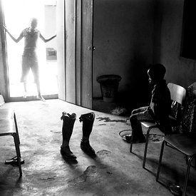 A boy ponders his father's artificial legs - a victim of the mutilations, Makeni