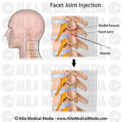 Cervical facet joint injection