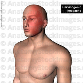 head-headache-cervicogenic-cervical-pain-neck-painlocation