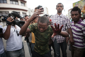 A protestor shows his fingers which was violently crushed by a concrete slab while he attempted to do a barricade as supporters of ex-president Marc Ravalomanana demonstrated in the center town of Antananarivo on October 18, 2014 after Ravalomanana was placed under house arrest. Madagascar police Saturday used tear gas to break up a rally by supporters of ex-president Marc Ravalomanana, who was placed under house arrest after returning from exile in South Africa. The former president, who was sentenced in absentia to life imprisonment with hard labour, slipped back into Madagascar on October 13, five years after a military coup and two months of violent protests forced him to flee first to Swaziland and then to South Africa.