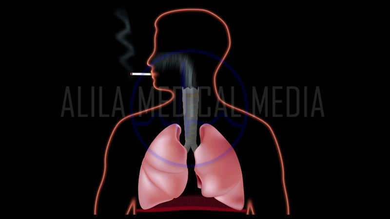 Effect of smoking on lungs, video.