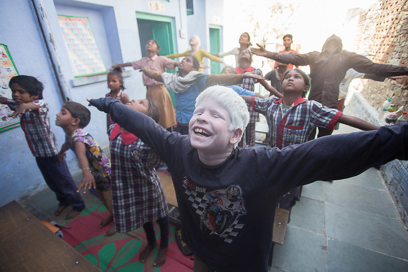 We provide children with albinism a quality and inclusive education