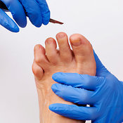 Chiropody/podiatry photos