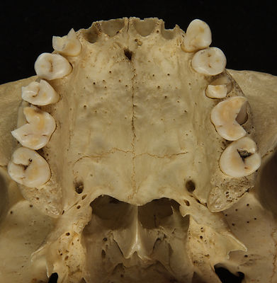 maxilla showing sutures