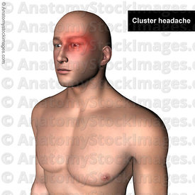 head-headache-cluster-headaches-pain-painlocation
