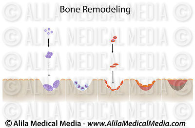 Bone remodeling cycle unlabeled