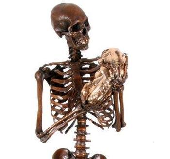 Bjorn Sjoling skeleton