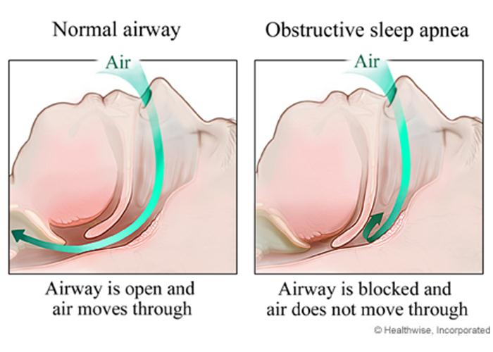 Image: Do I Have Snoring or Sleep Apnea?
