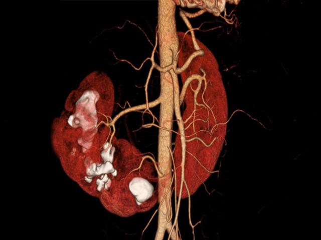 Cuddling Kidneys